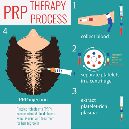 PRP therapy for women