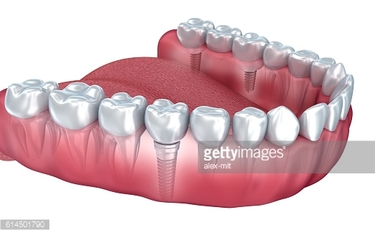 Lower teeth and dental implant transparent render isolated on white
